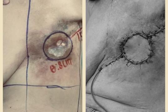 """""""Vá"""" lỗ hổng trên ngực do loét sau 20 năm điều trị ung thư vú"""
